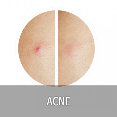 ACNE (9)